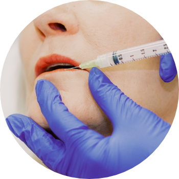a patient having a dermal filler injection at our aesthetic clinic in London